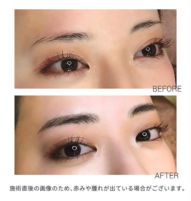 medicalbrows_case